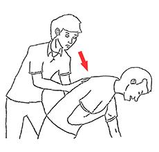 Heimlichův manévr při dušení